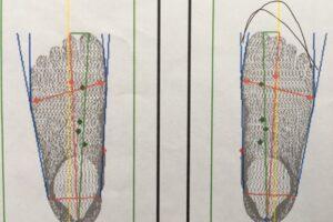 測定器での足型、スクエア型